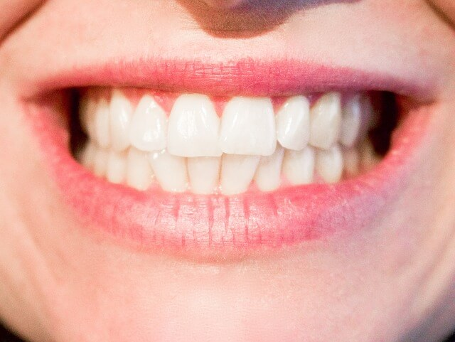 Dental Issues and Scuba Diving