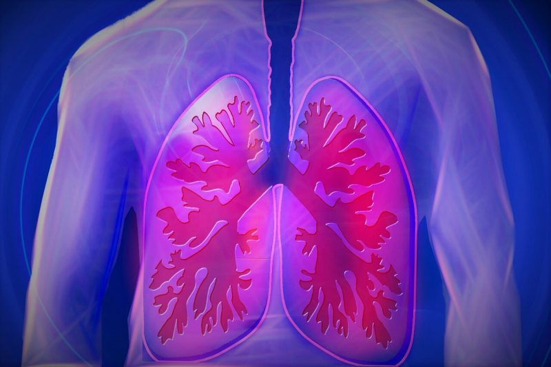 Lung Barotrauma